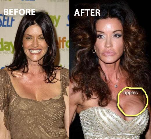 Janice Dickinson ( foto: Celebrity Plastic Surgery News )