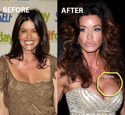 Janice Dickinson ( foto: Celebrity Plastic Surgery News )