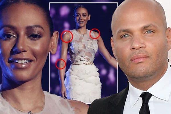 Da li je ove modrice na pevačicinom telu napravio njen suprug (foto: mirror)