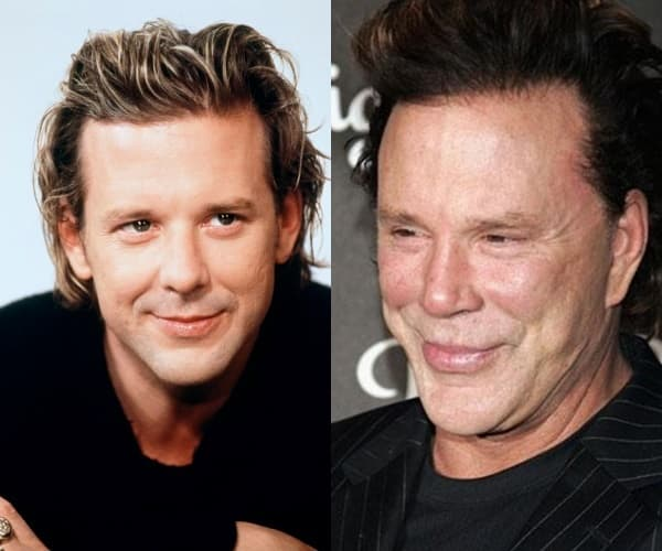 Mickey Rourke ( foto: Plastic Surgery Online Photos )