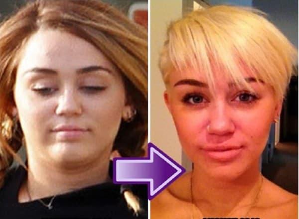 Pre i posle ( foto: Disfriend )