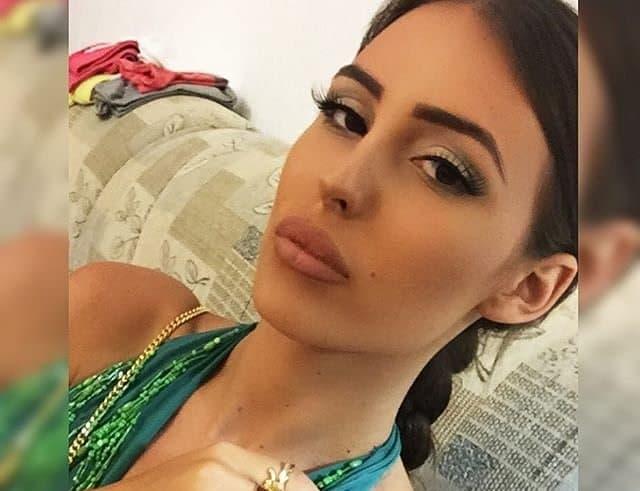 Anastasija Raznatovic lips