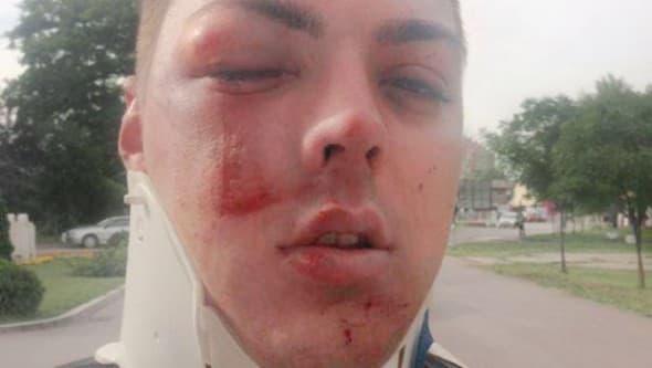 Pevaču su povrede ubrzo sanirane u Urgentnom centru (foto: Facebook)