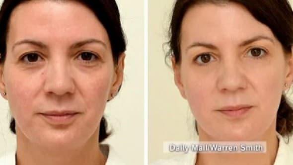 Sarah Smith odlučila je da dnevno pije 3l vode zbog glavobolje. Nakon 28 dana, razlike na njenoj koži su bile očigledne, a glavobolje su prestale (foto: Screenshot)
