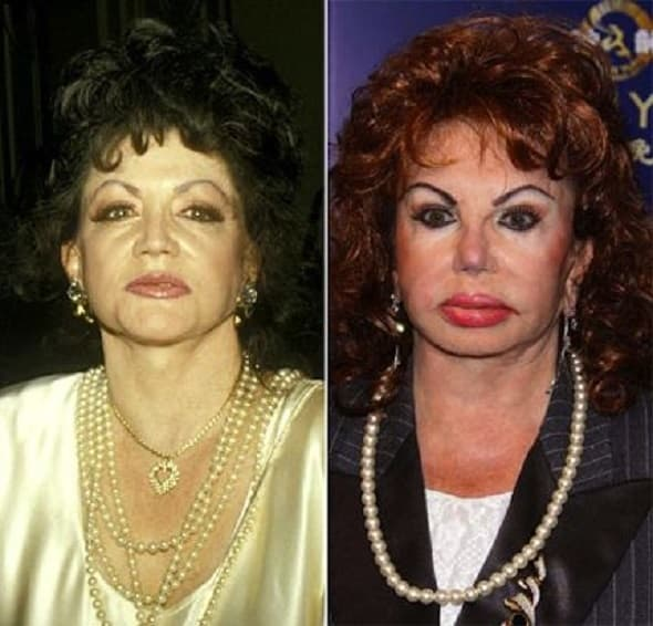 (foto: afterplastic surgery.com)