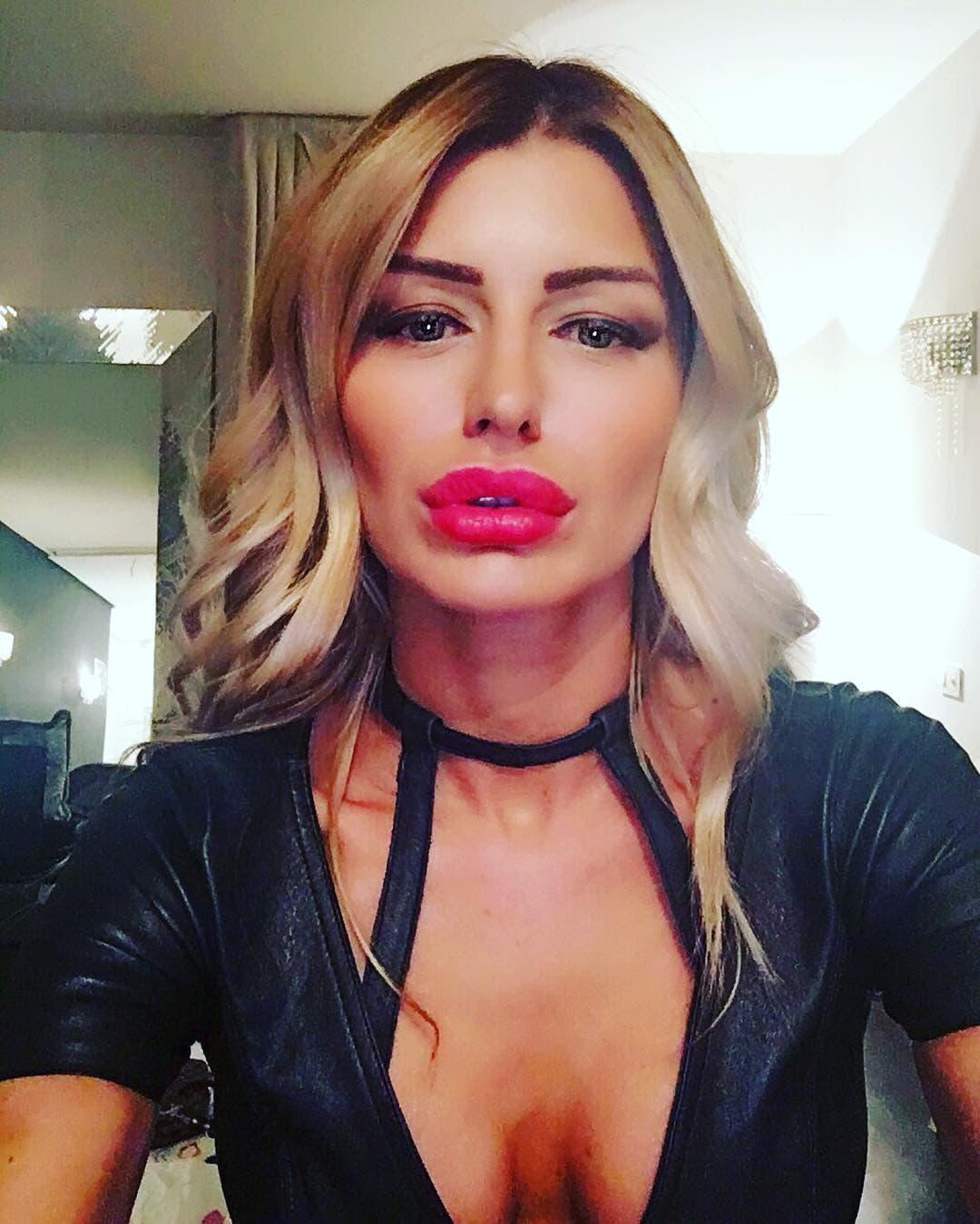 Sandra je povećala usne koje su sada prilično upadljive na njenoj mršavoj figuri (foto: Instagram.com/missobradovic)
