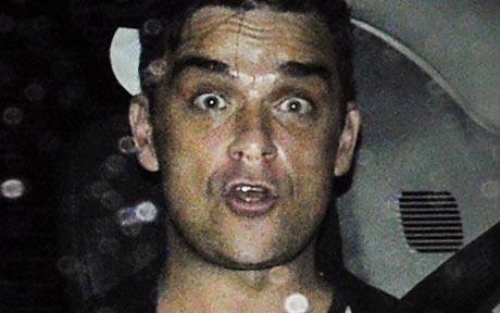 Robi Vilijams nakon što je njegov vozač pregazio Robijevog fana