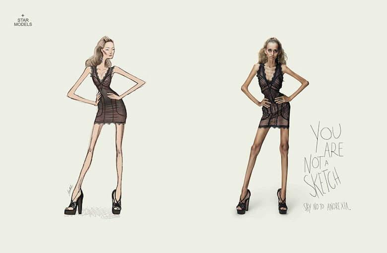 Ti nisi skica. Reci ne anoreksiji!