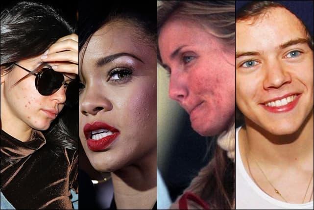 Zvezde koje su javno govorile o svojoj problematičnoj koži (foto: Wenn)